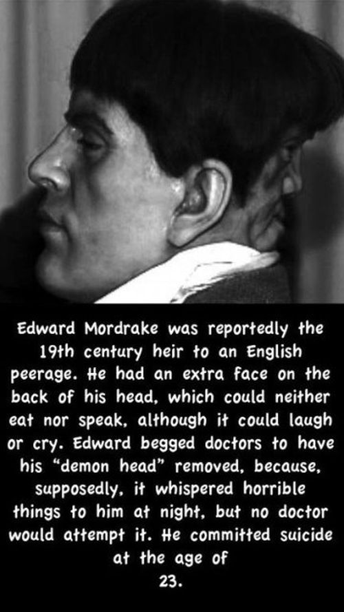 Edward mordrake the man with 2 faces