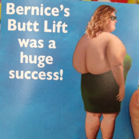 Bernice's butt lift was  huge success