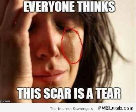 Everyone thinks this scar is a tear at PMSLweb.com