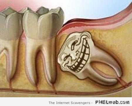 Wisdom tooth troll – Fun pictures at PMSLweb.com