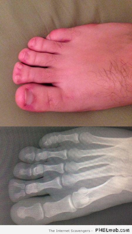 Foot with double toe at PMSLweb.com