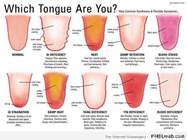 Which tongue are you at PMSLweb.com