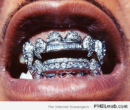Gross bling-bling mouth at PMSLweb.com