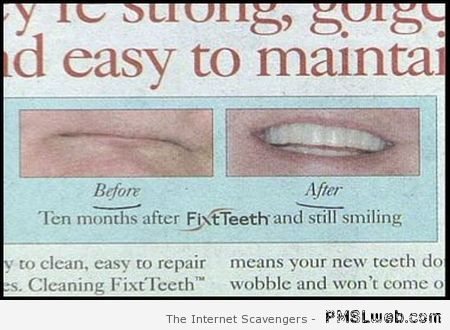 before after teeth fail – Monday nonsense at PMSLweb.com
