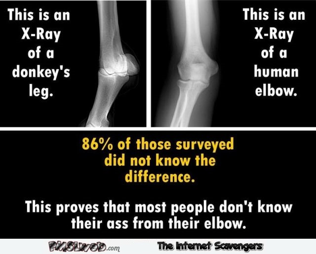 Donkey's leg and human elbow funny meme - Side splitting Monday @PMSLweb.com